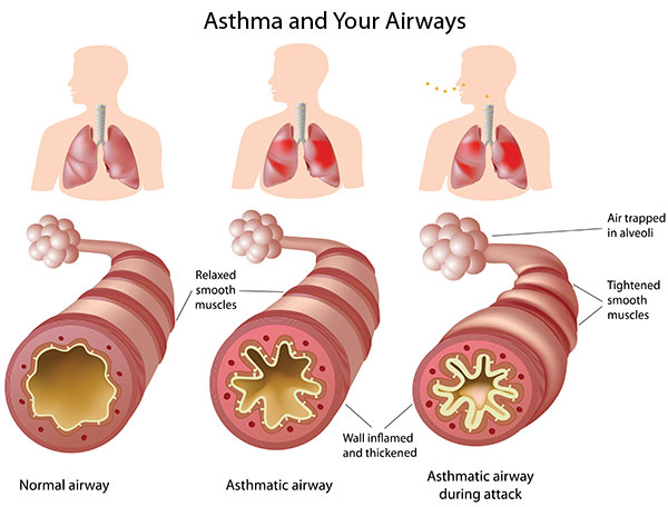 First aid: Asthma – how to help