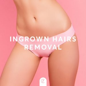 Ingrown Hairs Removal