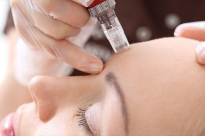 reasons to try microneedling